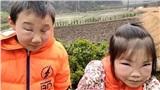 Dân mạng nghi ngờ gương mặt sưng tấy của hai đứa bé là do bạo hành hoặc thẩm mỹ hỏng, nguyên nhân thật sự ai nghe kể cũng phải bật cười
