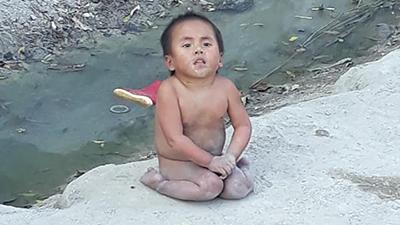 Chuyện nhói lòng về em bé tật nguyền không quần áo giữa trời giá lạnh
