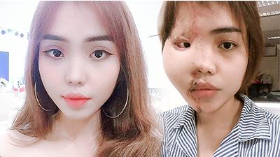 Cô gái bị chồng sắp cưới tạt axit: 'Anh ta đã muốn hủy hoại, tôi sẽ thật kiên cường'
