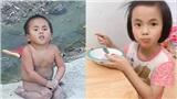 Em bé Mường Lát bị liệt 2 chân ngày nào đã thay đổi hoàn toàn sau gần 3 năm được nhận nuôi