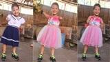 Tết đến, cô bé 8 tuổi cụt tay cụt chân Hiếu Thảo mừng rỡ khoe: 'Con có chân giả để đi học rồi'