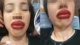 Cô gái đau đớn phải nhận kết đắng khi đi xăm môi làm đẹp, đôi môi sưng tều như 2 cây xúc xích