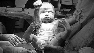 Đáng yêu khoảnh khắc bé trai chào đời giơ tay như Superman 'giải cứu thế giới'