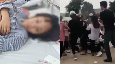 Quảng Ninh: Nữ sinh bị 12 bạn học đánh hội đồng, đạp liên tiếp vào đầu, nguy cơ tụ máu trong não