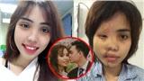 Cô gái bị chồng chưa cưới tạt axit hủy hoại toàn khuôn mặt: 'Có ai bắt được em ngủ với trai chưa?'