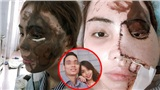 Vụ cô gái Đà Nẵng bị chồng sắp cưới tạt axit: Thời điểm bị bắt thu giữ 30 lít axit đậm đặc, nồng độ 98%