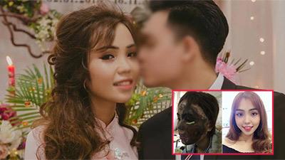Cựu thiếu úy Đà Nẵng tạt axit hủy hoại khuôn mặt vợ sắp cưới lĩnh án cao nhất 10 năm tù