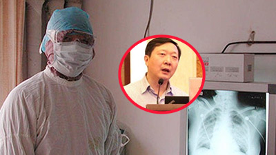 Bác sĩ nổi tiếng từng tuyên bố virus lạ ở Vũ Hán 'kiểm soát được' đã nhiễm viêm phổi cấp Corona