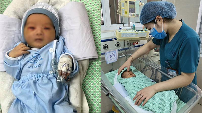 Em bé sơ sinh bị mẹ đẻ bỏ rơi ở hố ga nhiễm trùng máu nặng, đang phải thở máy