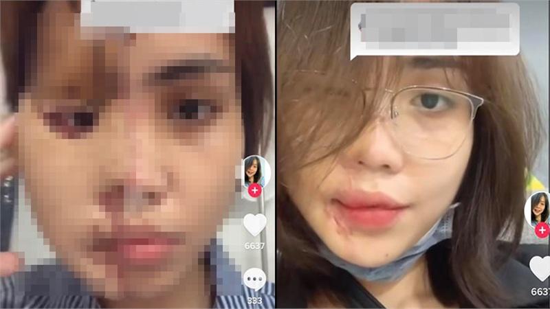Cô gái Đà Nẵng bị chồng chưa cưới tạt axit gây rúng động: Đã ghép da lưng vào vùng mặt bị hủy hoại