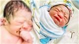 Báo Anh đưa tin về em bé chào đời cầm chặt vòng tránh thai ở Việt Nam