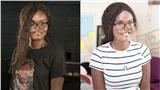 Nghị lực sống phi thường của cô gái ung thư xương bị biến dạng mặt