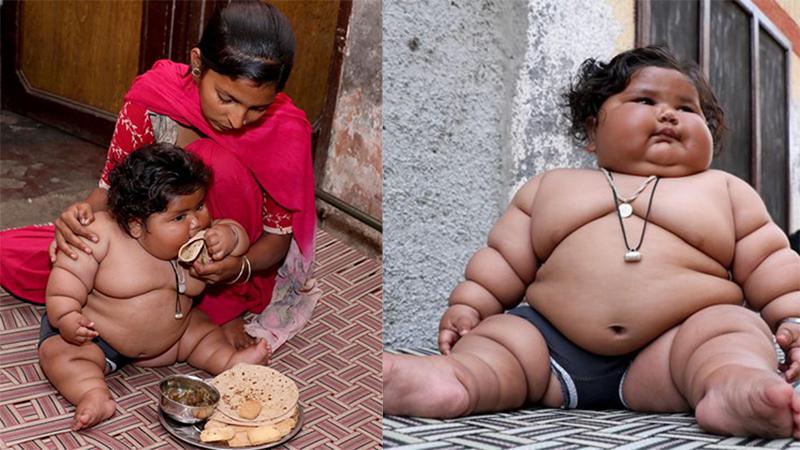 Bé gái ú na ú nần đột nhiên nổi tiếng vì 8 tháng tuổi đã nặng 17kg, sau 2 năm giờ ra sao?