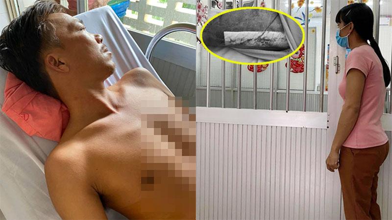 Người đàn ông bị rắn cắn ở Tây Ninh mổ ghép da lần 2 do vết thương bị hoại tử