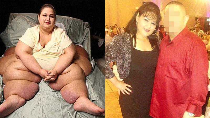 Hình ảnh mới nhất của người phụ nữ từng bị coi là 'sát thủ nửa tấn' vì tội nặng quá đè chết cháu trai quyết tâm giảm 363kg