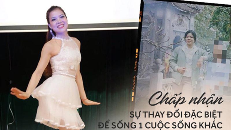 Bức ảnh thay đổi sau 15 năm của cô gái trẻ: Tai nạn đã cướp mất một chân, nhưng được sống là điều hạnh phúc