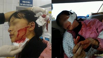 Nữ sinh lớp 11 bị rạch mặt do mâu thuẫn bán hàng, anh trai lên tiếng 'cầu cứu'