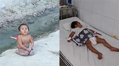 Mới biết tự xúc ăn, em bé tật nguyền ở Thanh Hóa bất ngờ nhập viện vì bệnh nặng