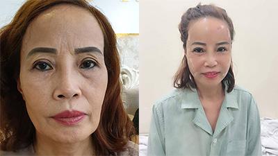 Cộng đồng mạng bất ngờ với diện mạo mới của cô dâu 62 tuổi sau khi... căng da mặt