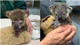 'Tin vui' giữa thảm họa cháy rừng: Một chú gấu koala thoát chết, hồi phục đáng kinh ngạc