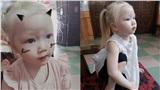 Em bé Nghệ An sinh ra tóc vàng như Tây dù bố mẹ là người Việt, càng lớn càng giống búp bê khiến ai gặp cũng xin chụp ảnh