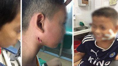 3 trẻ nhỏ xứ Nghệ bị 'vi khuẩn ăn thịt người' tấn công tuyến nước bọt mang tai