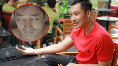 Để Thái tự sát rồi hiến tim, Khang 'Hoa hồng trên ngực trái': Tôi cũng không đồng ý với chi tiết này!