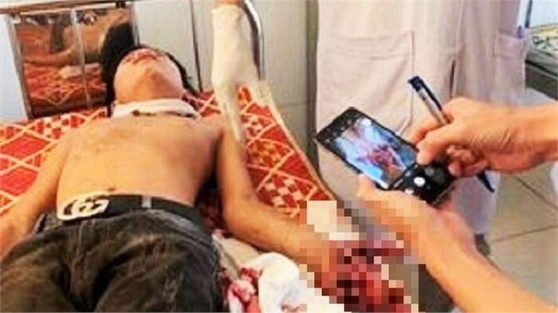 Đang học bài, laptop phát nổ khiến 1 học sinh nát bàn tay, 2 nam sinh bị bỏng