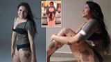 Cô gái có vết bớt phủ kín nửa cơ thể và hành trình truyền cảm hứng