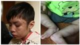 Những vụ bạo hành trẻ em gây chấn động dư luận