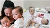 Mẹ Trúc Nhi - Diệu Nhi xúc động vào thăm con sau ca mổ tách rời: 'Ba mẹ sẽ cầu nguyện cho các con nhiều hơn'