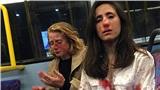 Phẫn nộ nhóm thanh niên hành hung 2 nữ đồng tính dã man để ép họ hôn nhau trên xe buýt