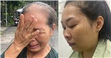 Rơi nước mắt cảnh mẹ trẻ liệt 2 chân sau tai nạn khi đi chở sầu riêng cho nhà chồng, 3 năm chỉ được gặp con 3 lần