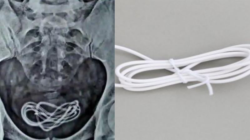 Bệnh nhân khai trót 'ăn' dây sạc điện thoại, nhưng bác sĩ lại tìm thấy trong bàng quang