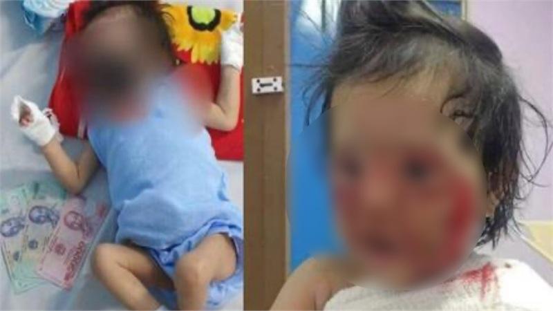 Kẻ gian nhẫn tâm lấy hình ảnh bé gái 15 tháng tuổi bỏng nặng đăng Facebook, bịa chuyện điều trị ở BV Chợ Rẫy để trục lợi