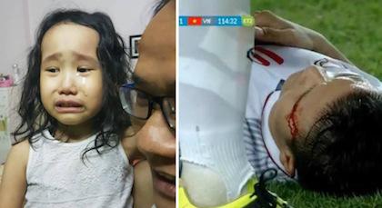 Cô bé khóc nức nở khi Quang Hải chảy máu, Duy Mạnh bị thương