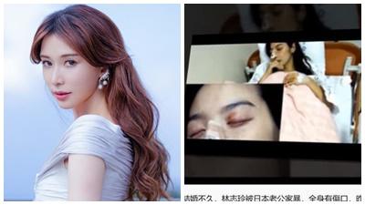 Lâm Chí Linh bị chồng bạo hành đến mức nhập viện chỉ sau 4 tháng kết hôn?
