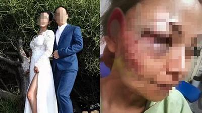 Chồng đánh vợ vì bị lộ chuyện ngoại tình, cận Tết nhưng cô vợ vẫn đưa ra quyết định 'cứng' được dân tình rào rào ủng hộ