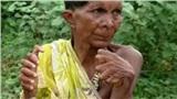 Người đàn bà nhiều ngón nhất thế giới