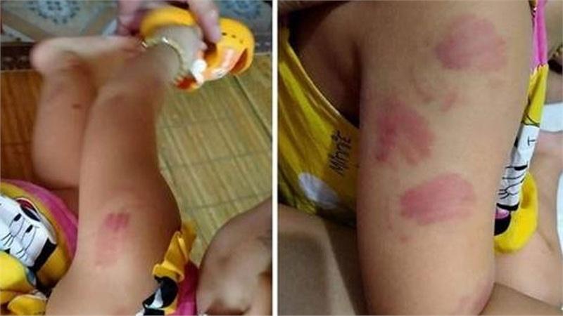 Đi học buổi thứ 2, bé gái về nhà với 12 vết tấy đỏ chi chít khắp người