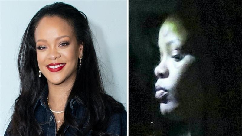 Rihanna xuất hiện với gương mặt bầm dập đáng sợ sau khi bị ngã xe điện