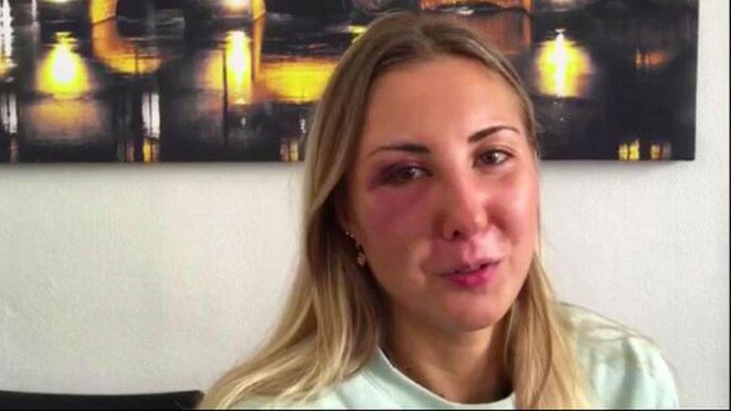 Cô gái bị 3 kẻ lạ đánh đập vì 'mặc váy ngắn', thái độ của những người xung quanh còn đáng lên án hơn