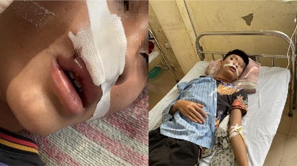 Hà Nội: Phụ huynh bức xúc trình báo công an con bị đánh hội đồng nhập viện ngay tại trường