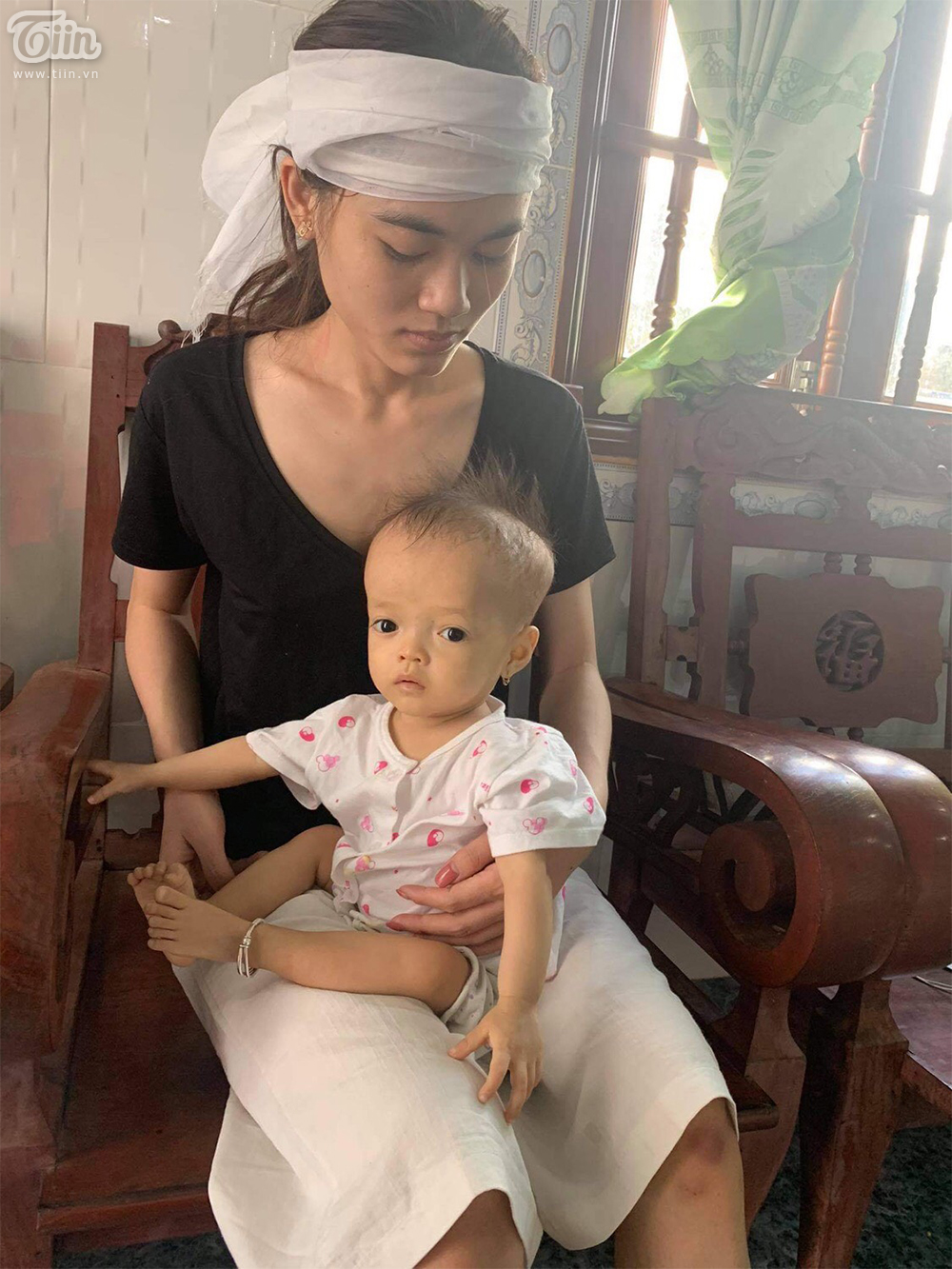 Chị Quỳnh và con gái 2 tuổi mắc bệnh xương thủy tinh