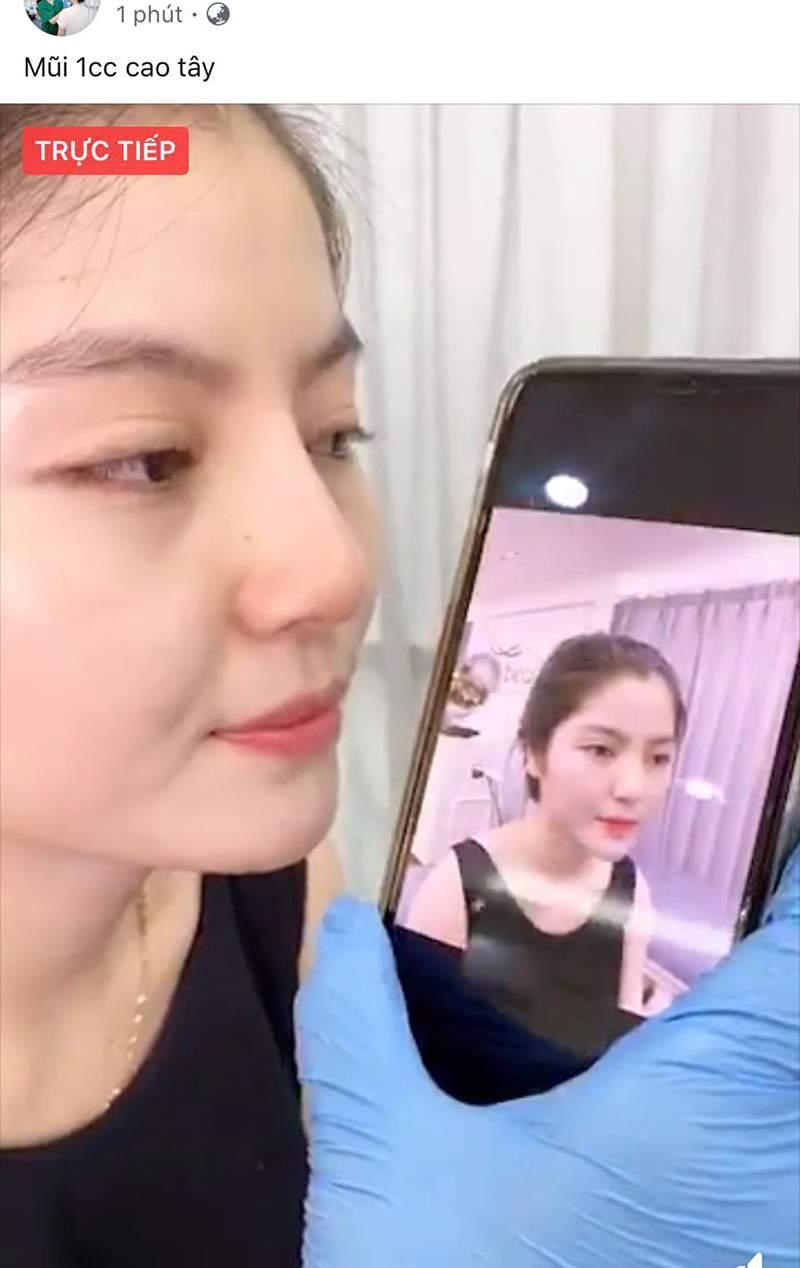 Bức ảnh được cho là chụp khi Chu Thanh Huyền đangđi nâng mũi