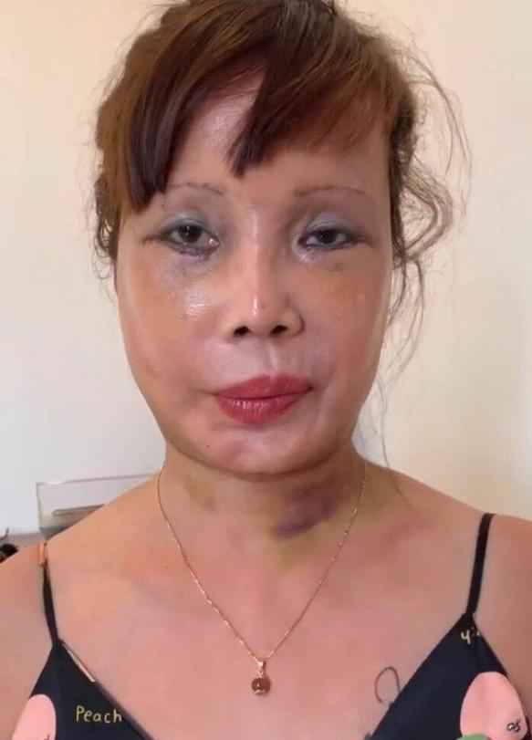 Vừa khoe gương mặt đã khỏi bị lệch, cô dâu Cao Bằng 64 tuổi lại hé lộ hình ảnh cho thấy mối quan hệ của chồng 'phi công' với con gái ruột 2